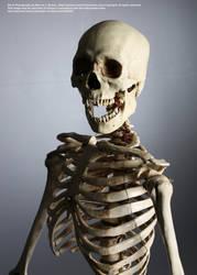 Skeletal - 5 by mjranum-stock