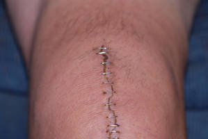 Surgical Staples STOCK No. 02 by slephoto