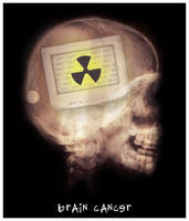 brain cancer by x-vegan-x