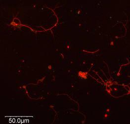 Drosophila Neurons - 60x Mag, Beta-Tub by Calpain-EqD