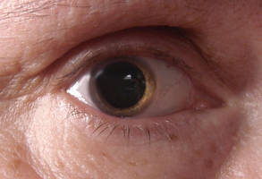 My eye dilated by angelstar22